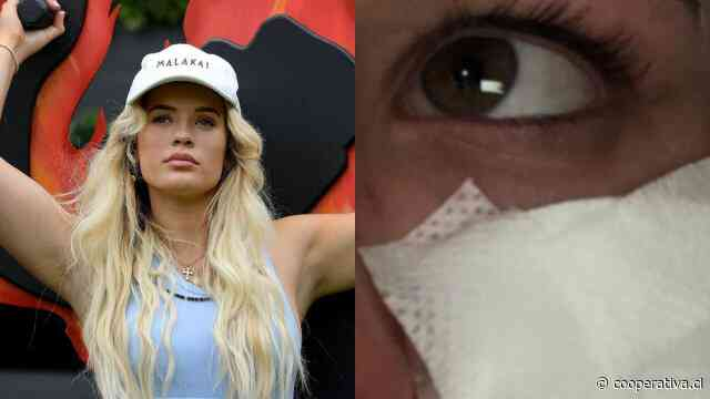 Influencer siguió tutorial de belleza de TikTok, se le quemó el rostro y perdió la visión temporalmente