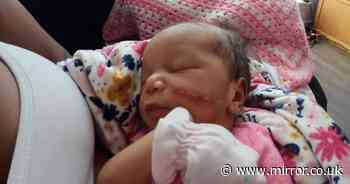 Newborn left needing 15 stitches on cheek after face was cut during C-section