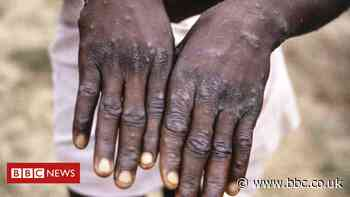 Monkeypox: More than 200 contacts tracked in US for rare disease