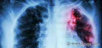Tuberculosis y covid-19: ¿el nuevo dúo maldito? - La Rioja