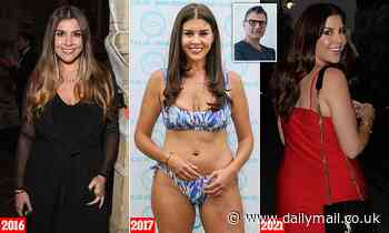 Ryan Gigg's ex Imogen Thomas sues dentist for £25,000 claiming he left her with a gap-toothed smile