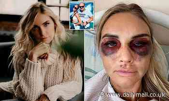 Pregnant Russian beautician loses baby after her jealous husband kidnaped and tortured her with iron