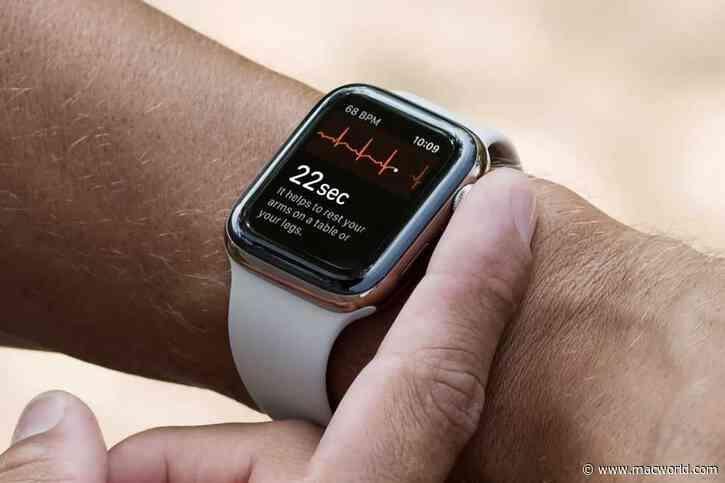 watchOS 7.6.1 update is available a security fix