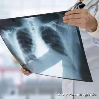 'Tegen 2035 sterven 2,45 miljoen mensen per jaar aan longkanker'