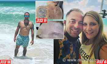 Elijah Snow's family share autopsy photos, revealing heavy bruising to firefighter's body