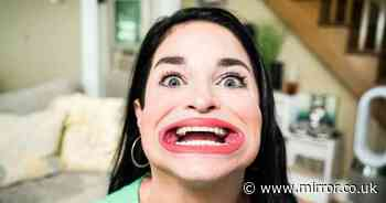 Woman with world's largest mouth awarded Guinness World Record for 6.52cm gob