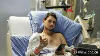 Leduc man's leg amputated after being shot in carjacking
