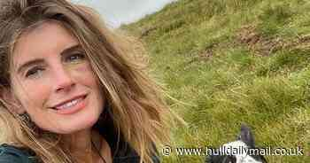 Yorkshire Shepherdess left with a black eye after 'sheep headbutt'