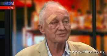 Former London Mayor Ken Livingstone appears on TV with nasty head injury