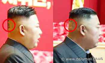 Kim Jong Un is spotted with plaster on the back of his head and dark spots
