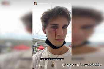 """Tom (25) wordt in volle bus aangevallen: """"Er is nog steeds veel homohaat in Brussel"""""""