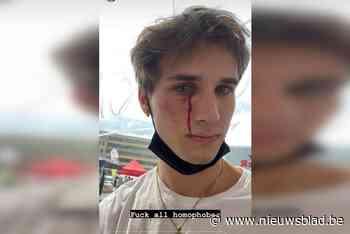 """Tom (25) wordt in volle bus slachtoffer van homofoob geweld: """"Zijn zoontje huilde dat hij moest stoppen"""""""