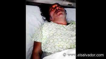 Mujer afectada con aceite quemado al explotarle mechero en Sonsonate - elsalvador.com