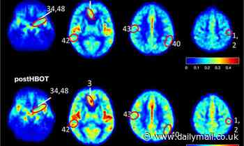 Australian study finds drugs could be used to alleviate the symptoms of Alzheimer's
