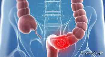 Cáncer de colon: Un mal que se puede prevenir con hábitos de vida saludables - Diario Perú21