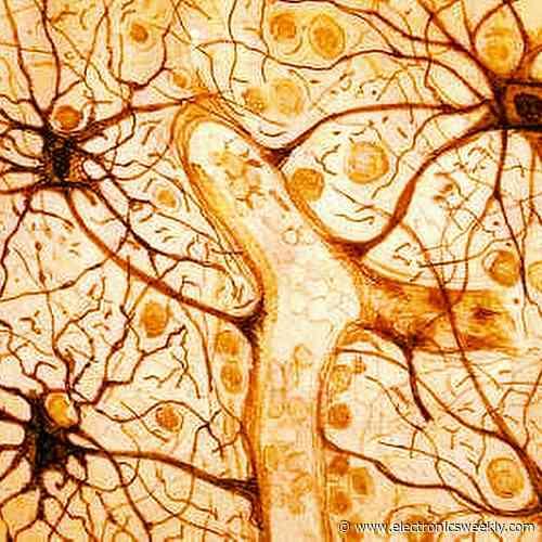 Imec joins with Neurogyn for pelvic nerve stimulator implant development