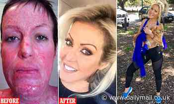 Burns survivor working as cosmetic nurse after being burned alive by jealous woman Perth Australia
