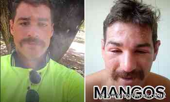 Aussie backpacker working on a mango farm shares footage of allergic reaction