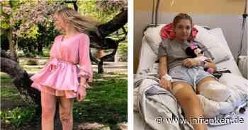 Nürnberg: Anna (19) fängt sich Krankenhauskeime ein - und verliert ihr Bein