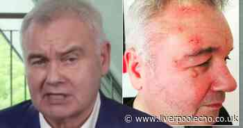 Eamonn Holmes offers apology after being a 'no show' for events due to catching Covid
